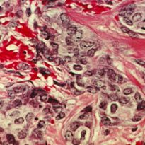 Cancerous breast tissue, with normal connective tissue (pink) and cancer cells (blue).