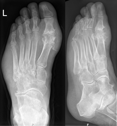 diptych of two x-rays of a foot from different angles showing swelling in the joint along the big toe